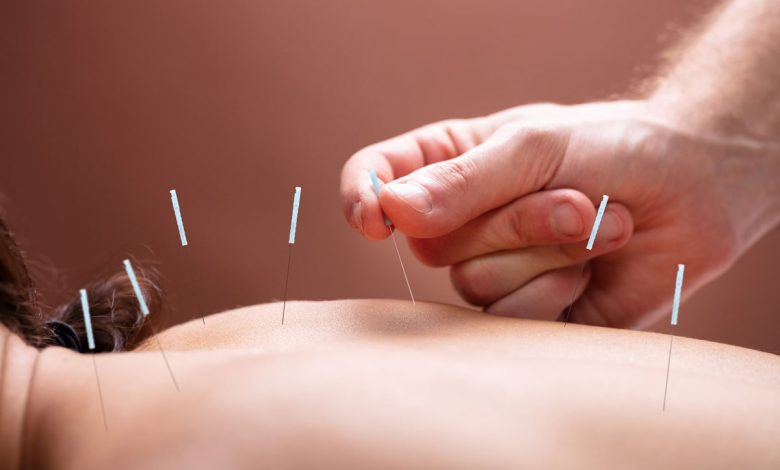 Photo of Piaget debates benefits and integration of acupuncture in health services